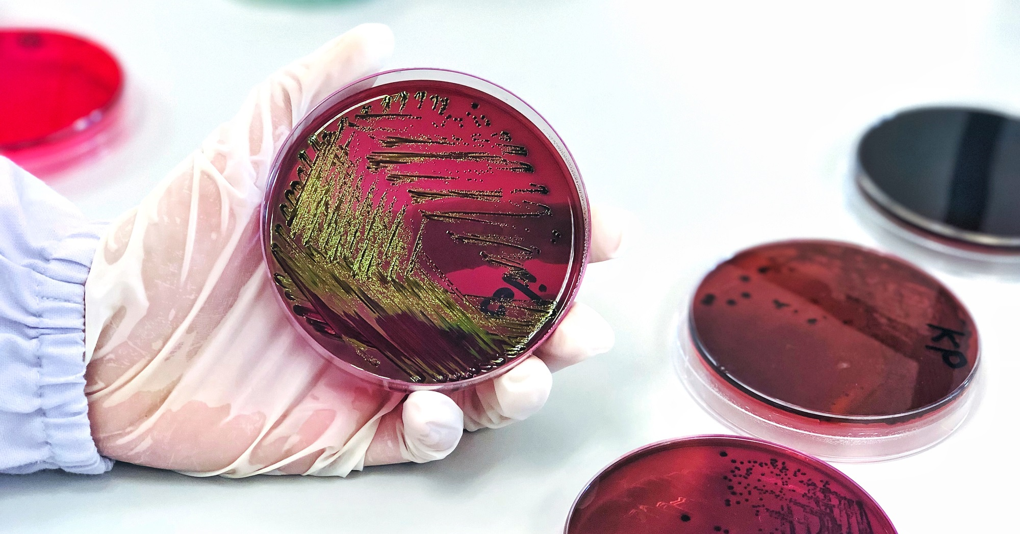 Escherichia coli (E.coli) cultured with Eosin Methylene Blue (EMB) Agar in Petri dish show the metallic green sheen colonies, hold in scientist hand in medical health laboratory for analysis disease.