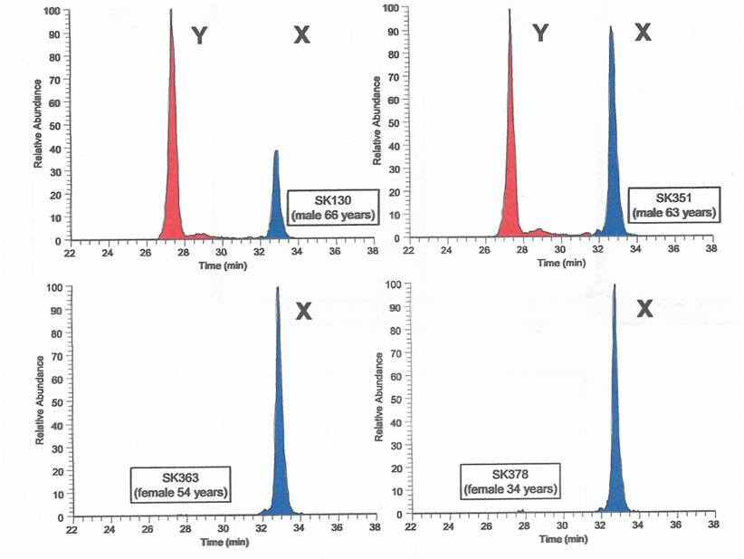 Results of Peptide Identification - Ultrapure Water