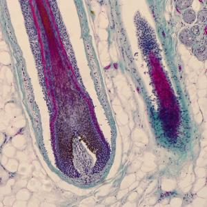 Microscopic picture (400x magnification) of roots of hair in human head skin. Hair follicles.